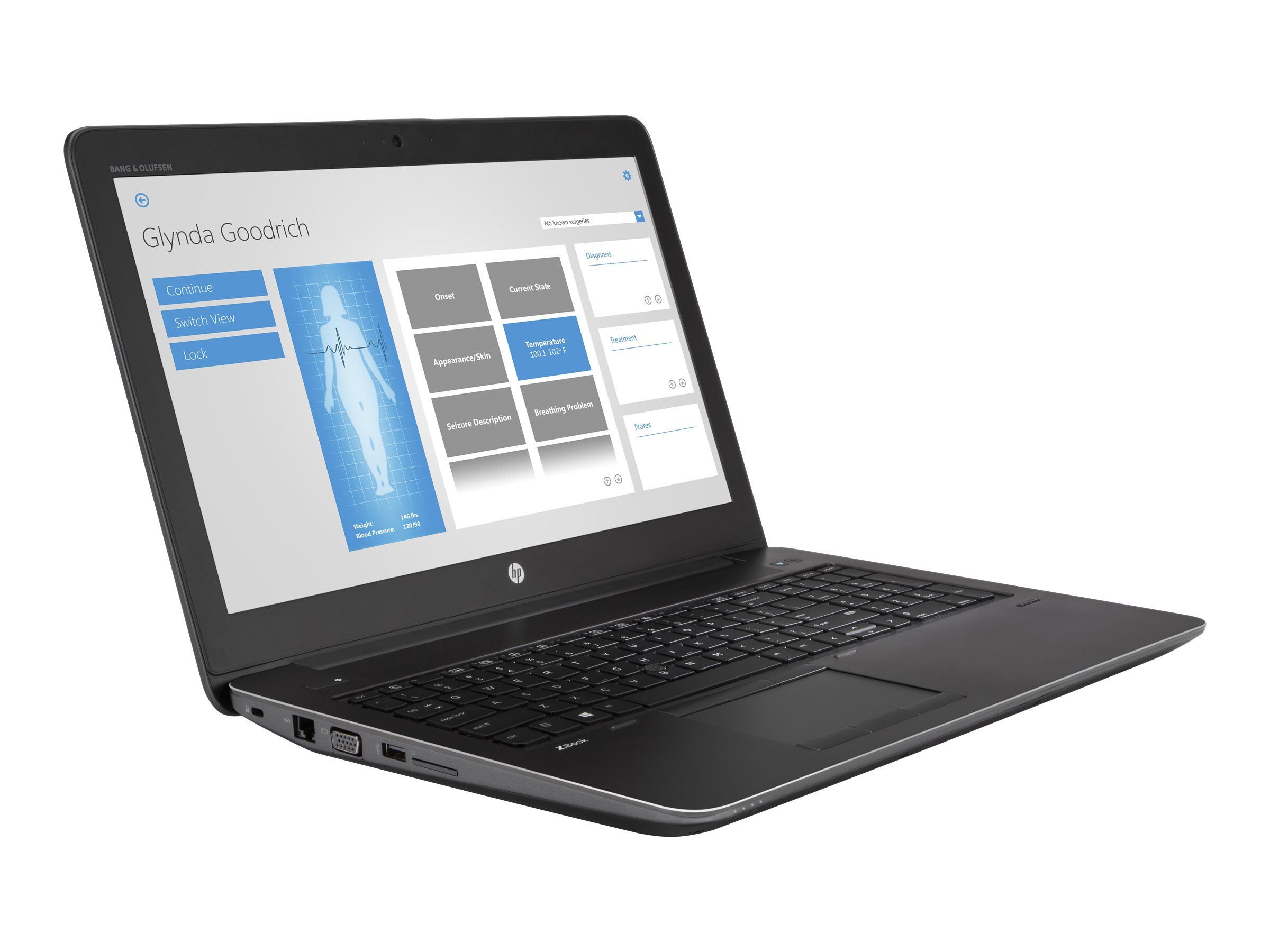 HP ZBook 15 G4 Mobile Workstation - Core i7 7700HQ / 2.8 GHz - Win 10 Pro 64-Bit - 8 GB RAM - 256 GB HDD NVMe, HP Turbo Drive G2, TLC - 39.6 cm (15.6